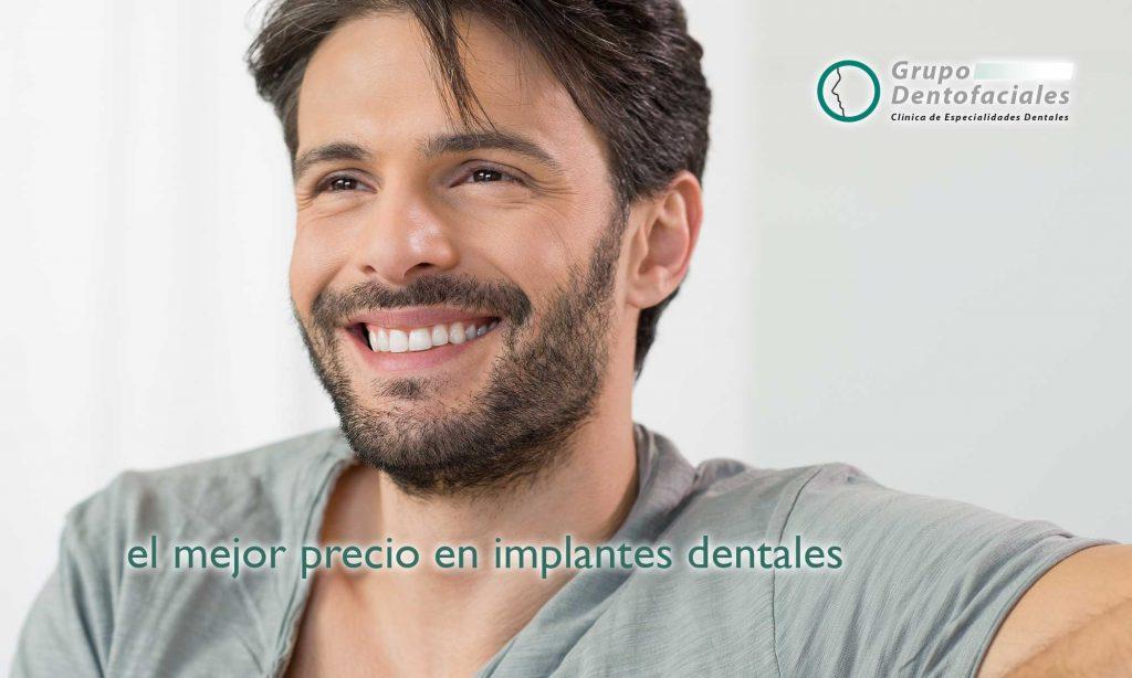 El mejor precio en implantes dentales